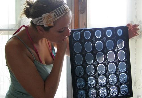 レビー小体型認知症の症状の進行性。どんな治療法で治す?