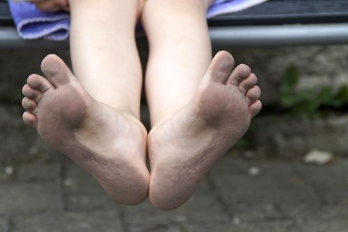巻き爪の化膿は激痛!膿はどうする?痛いけどやっぱり病院に行くべき?