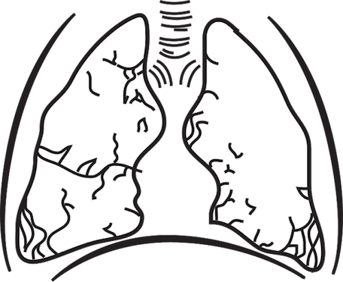 呼吸する肺