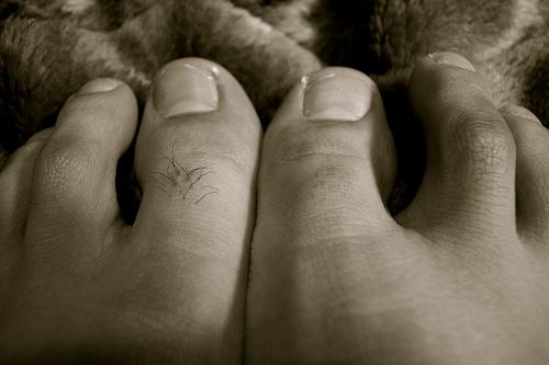 痛風の症状は足首や膝にも起こる?親指だけじゃない初期症状