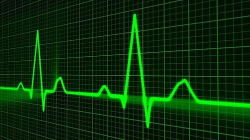 心電図が不整脈