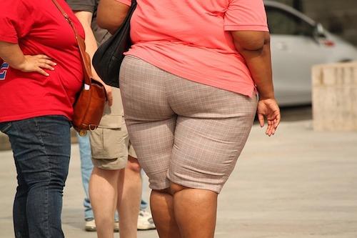 サルコペニア肥満?
