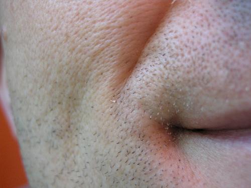 ほうれい線の消し方は歯ブラシで!?舌の体操とメイクで消す方法。