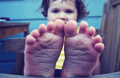 足の裏にほくろがあると癌に!?子どもの場合どんな意味が?