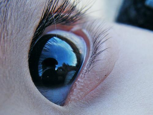 眼圧高い どんな症状?原因はパソコン,コンタクト?ストレスでも?