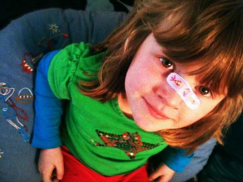 子供の鼻血 頻繁に出る理由!幼児は熱上がると?止まらない時は?