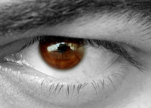 目の充血と目やにが出る!痛みはないけどコンタクトのせい?