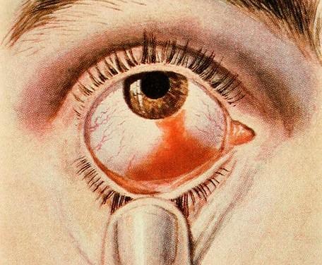 目の充血の治し方!目薬で治す?泣くことで解消できる?