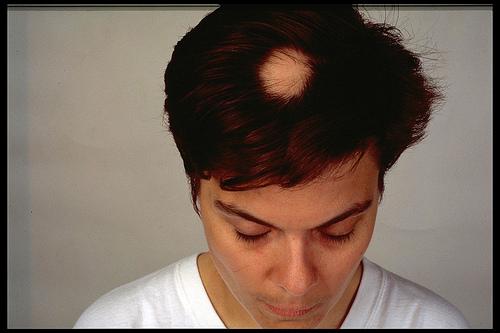 円形脱毛症 多発型の原因と完治して復活した人のお話。