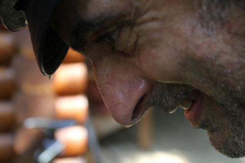 汗を止めるボトックス注射の費用。顔や脇汗に効果的なのか?