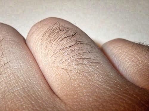 手の甲の脱毛はどうする?男の濃い指毛は嫌われる?効果のあるもの