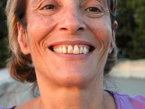誤嚥性肺炎の予防法に歯周病治療!?口腔ケアが大事なワケとは