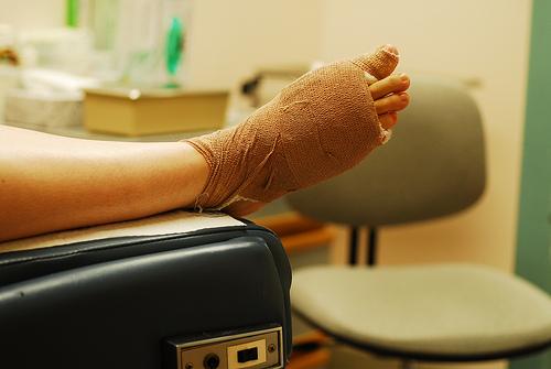 メラノーマは爪にも!?どんな症状で痛みが?見分け方と治療法について