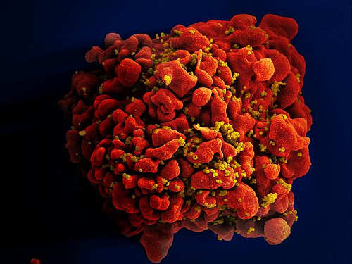 劇症型溶連菌感染症の原因と感染経路。予防法と治療法について